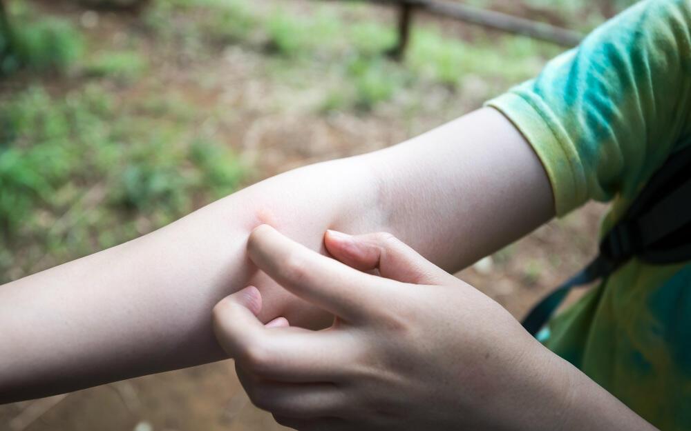 蚊に刺され続けるとアレルギー反応は薄くなる? 夏の虫刺され対策を紹介
